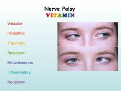eyes truths interesting, signs and signs that can inform the overall health of yourself Medical Mnemonics, Pharmacology Nursing, Nursing School Tips, Ob Nursing, Nursing Schools, Red Eye Causes, Optometry School, Nerve Palsy, Cranial Nerves Mnemonic