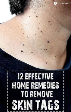 Skin Remedies 12 Effective Home Remedies To Remove Skin Tags: There is no need to go for fancy chemical or cosmetic procedures to remove these outgrowths. You can use simple ingredients found at home and get rid of them easily, and at a very low cost. Molluscum Pendulum, Beauty Skin, Health And Beauty, Beauty Care, Beauty Advice, Face Beauty, Remove Skin Tags Naturally, Get Rid Of Warts, How To Remove Warts