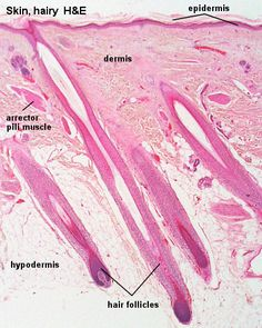 microscopic layers of hypodermis sebaceous gland - Google Search