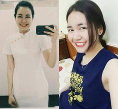 Lê Huyền Trang là cô gái đã từng sở hữu hàm răng cắn ngược rất xấu xí