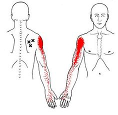 Acupuncture Pain Relief Trigger Points and Shoulder Pain - Muscle Pain, Acupuncture, Repetitive Strain Injury, Referred Pain, Dry Needling, Muscle Knots, Physical Therapy, Massage Therapy, Health Tips