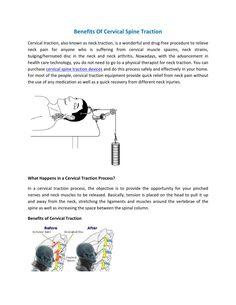 Benefits Of #Cervical #Spine #Traction