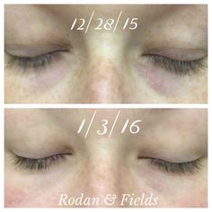 Rodan & Fields REDEFINE Eye Cream and Eye Cloths pack a powerful punch! Whether it's dark circles, fine lines or puffiness, these 2 products offer amazing results. Look at what 1 week can do! https://jamiedanielle.myrandf.com/