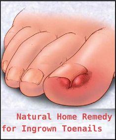 Natural Home Remedy for Ingrown Toenails #toenail #ingrowntoenail #naturalremedies