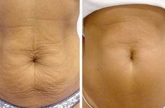 Are you one among the people who are struggling on how to get rid of cellulite fast? Find here best treatments to get rid of cellulite on thigh, legs, bums Natural Skin Tightening, Skin Tightening Cream, Tightening Stomach Skin, Firming Cream, Get Healthy, Healthy Skin, Healthy Life, Fitness Tips, Health Fitness