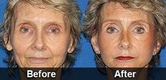 Anti-Wrinkle Serum That Removes The Signs Of Aging Gets Biggest Deal In Shark Tank History Makeup Tips For Older Women, Anti Aging Medicine, Brigitte Macron, Finally Happy, Facial, Under Eye Bags, Eye Wrinkle, Wrinkle Remover, Shark Tank
