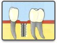zahnimplantate Dental Implant Cost, Dental Implants, Hungary, Health