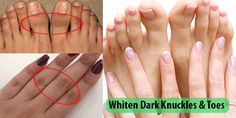 How to Lighten Dark Knuckles and Toes Here we share very easy tips to get rid of dark knuckles and toes naturally. This is very easy and cheap remedy to lighten dark knuckles and toes. You can easily do this at your home by taking simple easy items from the kitchen. Get Rid of Dark ...