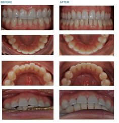 Invisalign Orthodontic treatment by Dr Charlotte de Courcey-Bayley and her team. Invisalign treatment was started in Feb 2014 to improve the crowed lower teeth, slight over bite and slightly crowed front teeth.  Over the course of 6 months of wearing each set of aligners for at least 22 hours a day, her teeth are now straight and evenly spaced!