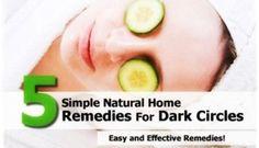 5 Home Remedies to Treat Dark Circles