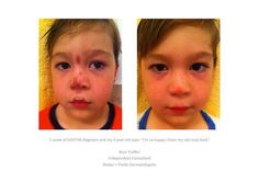 Rodan and Fields - Kids Amazing before + After pic from an R+F mama! Don't let your babies suffer from skin issues. Soothe Regimen info here: https://ashleyburns.myrandf.com/Shop/Soothe