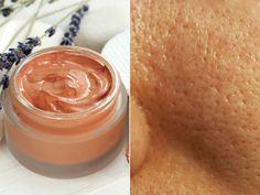 Good Skin Tips, Beauty Tips For Skin, Beauty Skin, Health And Beauty, Beauty Hacks, Facial Tips, Facial Care, Diy Beauty Treatments, Skin Treatments