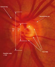 optic+disc | Community Eye Health Journal » The optic nerve head in glaucoma