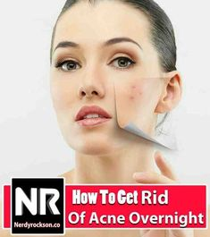 How To Get Rid Of Acne Overnight     Ever thought about how to get rid of those annoying acne? I know your answer is yes, so read this article to know how.   Acne treatment | Beauty tips | Get Rid of Acne #getridofacnediy