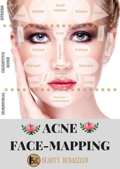 Acne Face Mapping - What does Your Acne Tell YOU? - Beauty Bedazzled