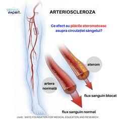 Human Anatomy, Human Body, Good To Know, Infographic, Education, Health, Varicose Veins, Info Graphics, Health Care