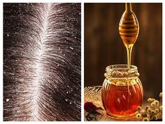 /136365-the-side-effects-anti-dandruff-shampoos/  2. SixWise.com, The Most Toxic Soaps and Shampoos Well Worth Avoiding Anti Dandruff Shampoo, Best Shampoos, Light Bulb, Hair Beauty, Soap, Side Effects, Nature, Diy, Medicine