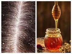 Șampoanele anti-mătreață se numără printre cele mai toxice produse de pe piață. Cele mai dăunătoare sunt Nizoral, Head and Shoulders și Selsun Blue. Anti Dandruff Shampoo, Best Shampoos, Light Bulb, Hair Beauty, Soap, Side Effects, Nature, Diy, Medicine