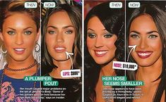 Megan Fox Plastic Surgery Before After Always interesting what you can find when you type in surgeons and other related terms Megan Fox Plastic Surgery, Plastic Surgery Before After, Celebrity Plastic Surgery, Plastic Surgery Procedures, Cosmetic Procedures, Body Lift Surgery, Kim Kardashian, Surgery Doctor, Under The Knife