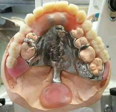 The devil tried to make bigger, better men to spite God. They ended up with extra rows of teeth and 6 toes and 6 fingers. That is how you can tell fake Nephilim giant fossils from real ones. Dental World, Dental Life, Smile Dental, Dental Art, Dental Technician, Braces Colors, Dentist Humor, Brace Face, Salud Natural