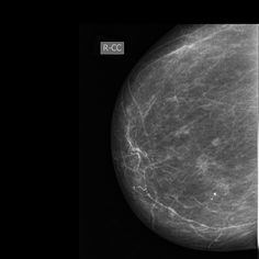 Mammography - 00001 - make the diagnosis in different languages