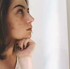 Beautiful Inside And Out, You Are Beautiful, Beautiful People, Girl With Acne, Jon Cozart, John Green Books, Dodie Clark, Bare Beauty, Camp Wedding