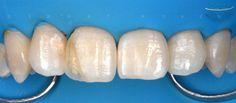 Posterior matrix bands for anterior direct composites by Dr. Serhat Köken from Istanbul, Turkey. Dentaltown Message Board > Restorative Dentistry > http://www.dentaltown.com/MessageBoard/thread.aspx?s=2&f=216&t=241304&r=3674538&v=1   #Dentaltown #PosteriorMatrix #DirectComposite #Dentistry #DentalCE #DentalOnlineCE #DentalLearningOnline #DentaltownOnlineCourses #DentalStudyClub #DentalSocietyMeeting #DentalSeminars #DentaltownMessageBoard