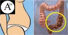 intestino pieno di feci