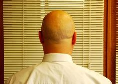 Ayurvedic Tips for Hair Loss