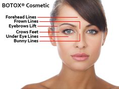 All you need to know about Botox before actually having it done: http://mdweightlossandcosmetics.com/things-consider-getting-botox/