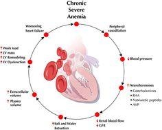 anemia pathophysiology - Google Search