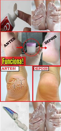 Melhore a aparência dos seus pés com um segredo simples #pés #beleza #mulher #dicas
