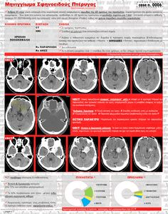 Case n. 0006 - Μηνιγγίωμα Σφηνοειδούς Πτέρυγας