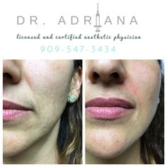 This patient wanted her nasolabial folds, also known as the parentheses lines, addressed. We accomplished a softening of the nasolabial folds with less than 1 mL of filler, either Restylane or Juvéderm are perfect in this area. We also augmented the cheek with the same filler to give her a little bit more projection  and to fill in areas of volume loss.