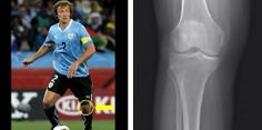 Captain #DiegoLugano has been suffering from a knee #injury, and will not be competing in #Uruguay's clash against #England today. The central defender does not need surgery, but will be rested in hopes of recovering. Take a closer look at knee #injuries in professional sports at http://insideinjuries.com/category/knee-injury/. #WorldCup