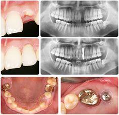 Cấy ghép răng implant bằng công nghệ 4S hàng đầu thế giới giúp phục hình lại răng mất ✓ An toàn ✓ không đau, ✓ răng đẹp và bền như răng thật...