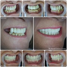 The largest provider of Dental Treatment in Turkey. We provide a range of treatments including: Dental Implants, Porcelain Crowns, Dental Veneers and Smile Makeovers. Contact us today about your dental treatment in Turkey Teeth Implants, Dental Implants, Health Day, Oral Health, Maryland, Dental Bridge Cost, Porcelain Crowns, Tooth Crown, Dental Veneers