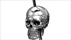 Phineas Gage: The man with a hole in his head. By Claudia Hammond & Dave Lee. BBC World Service Phineas Gage, Bbc World Service, The Man, Skull, Drawings, Brain, Science, The Brain, Sketches