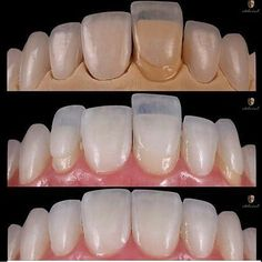 Minimally invasive dentistry is tissue preservation preferably by preventing disease from occurring and intercepting its progress but also removing and replacing with as little tissue loss as possible. Excellent case of minimally invasive veneers. : @sastyrefausy #biomimeticstudyclub #biomimeticdentistry #dentalstudent #dentalschool #dentalassistant #dentist #dentistry #dentista #dentalveneers #dentalphotography