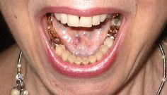gold teeth from heaven supernaturally appears in people's mouths as the glory cloud appears