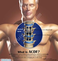 What is ACDF? Lower Back Pain Relief, Upper Back Pain, Acdf Surgery, Spinal Fusion Surgery, Neck Surgery, Neck Problems, Sciatica Pain Relief, Tight Hip Flexors, Psoas Muscle