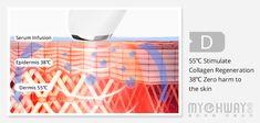 Facial Care | New Mini Portable Radio Frequency RF Face Slimming Machine Radio Frequency, Facial Care, Skin Tightening, Skin Problems, Anti Wrinkle, Human Body, Collagen, Serum, Mini