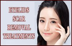 Learn best eyelids scar removal treatments that occur after blepharoplasty eyelids surgery. Get scar free eyelids for vibrant and beautiful looking eyes. Scar Treatment, Skin Treatments, Castor Oil For Eyes, How To Get Rid Of Acne, How To Remove, Getting Rid Of Scars, Eyelid Lift