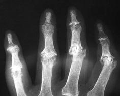 artrosis erosiva inflamatoria