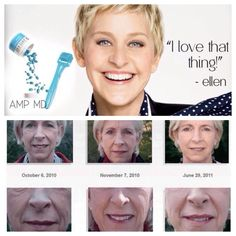 Wondering how Rodan + Fields AMP MD Roller WORKS? The AMP MD Roller is a non-invasive skincare roller clinically proven to safely... *Condition the skin's surface using micro-needle tips.  *Increase appearance of firmness and elasticity.  *Reduce the appearance of fine lines and wrinkles.  *Improve skin texture and minimizes the appearance of pores and proprietary blend of retinol and peptides.