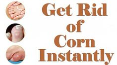 Corn Treatment - How to Get Rid of Corn on Foot - Corn Removal Corns develop on the toes by friction and pressure. You can remove the corns from your toes by. How To Remove Bunions, How To Remove Corns, Toe Corn Removal, Toe Callus, Corn On Toe, Corn Feet, Distance, Lets Go, Mushrooms