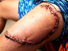Man survives shark attack, with help from his friends Bodily Injury, Horror Makeup, Shark Bites, Special Effects Makeup, Fx Makeup, Great White Shark, Shark Week, Animals Of The World, Medical Conditions