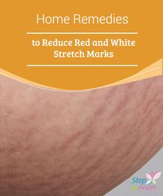 Home Remedies to Reduce Red and White Stretch Marks White Stretch Marks, Stretch Mark Remedies, Lose Weight, Weight Loss, Atkins Diet, Natural Home Remedies, Skin Care Tips, Stretches, Red And White