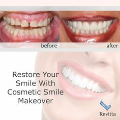 There are various reasons why someone might opt to have a #cosmetic #SmileMakeover. You are an excellent candidate for a #Cosmetic #Smile #Makeover if you feel self-conscious because of any of the following: #CrookedTeeth and overlapping; #Discoloration of the #teeth; #WornTeeth; #ChippedTeeth: #SpacedTeeth. We can help you to improve all of the above problems, leaving you feeling confident about your #smile | www.revittasmile.com | #Revitta #Dental | 212.535.1202 | #beauty #dentist