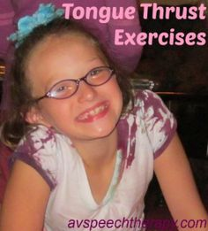 tongue thrust exercises for jaw, lips and tongue (myofunctional speech therapy) plus links to two additional posts on exercises for tongue thrust